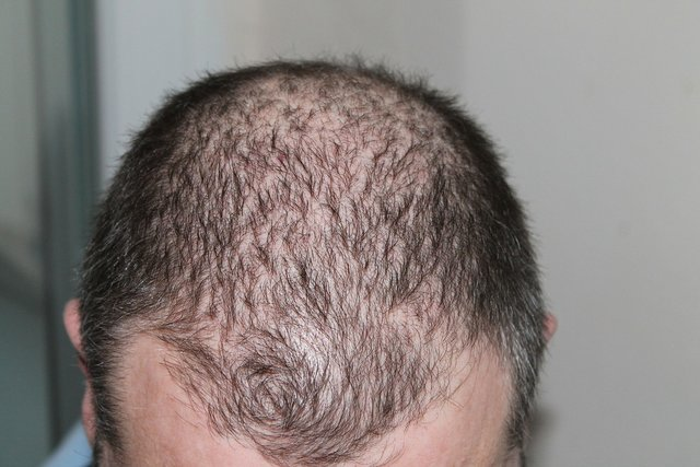 Frontal pattern baldness