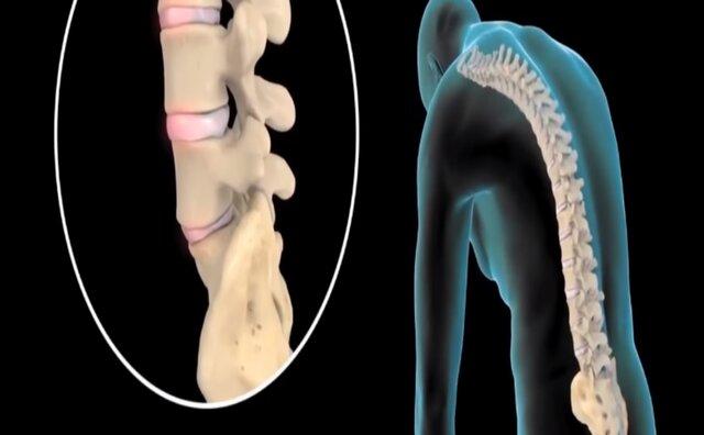 bad posture skeleton 2